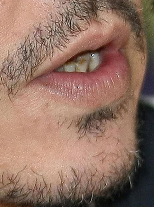 Detail hercových zubů.
