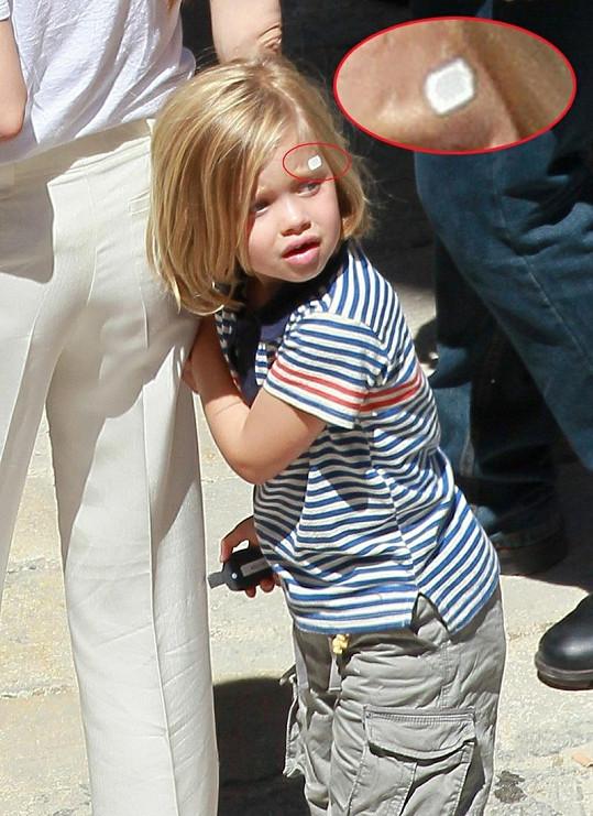 Malá Shiloh s náplastí.