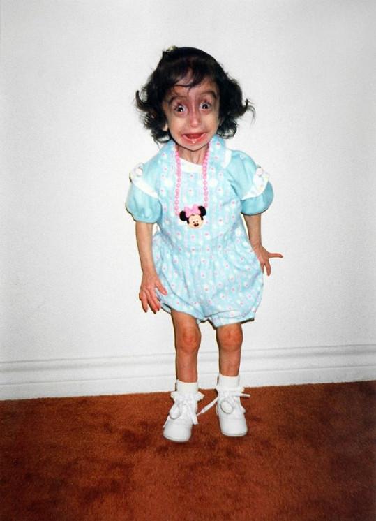 Lizzie v dětství.