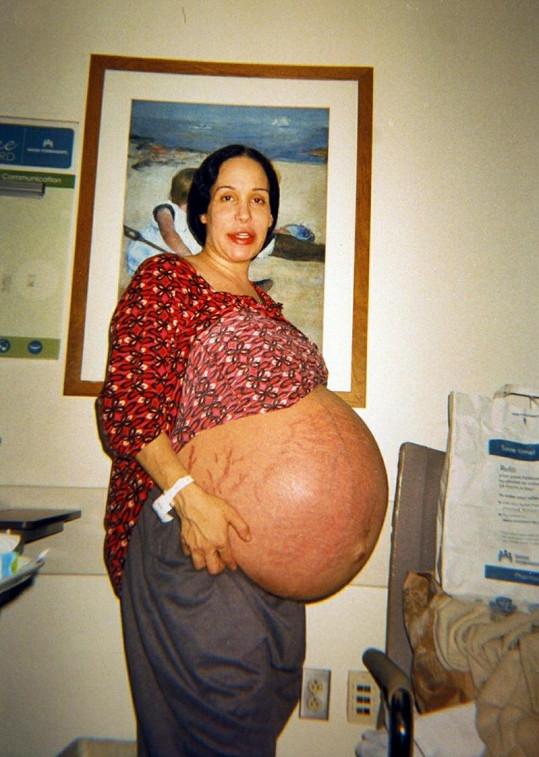 Nadya Suleman v roce 2009, kdy čekala osmerčata.