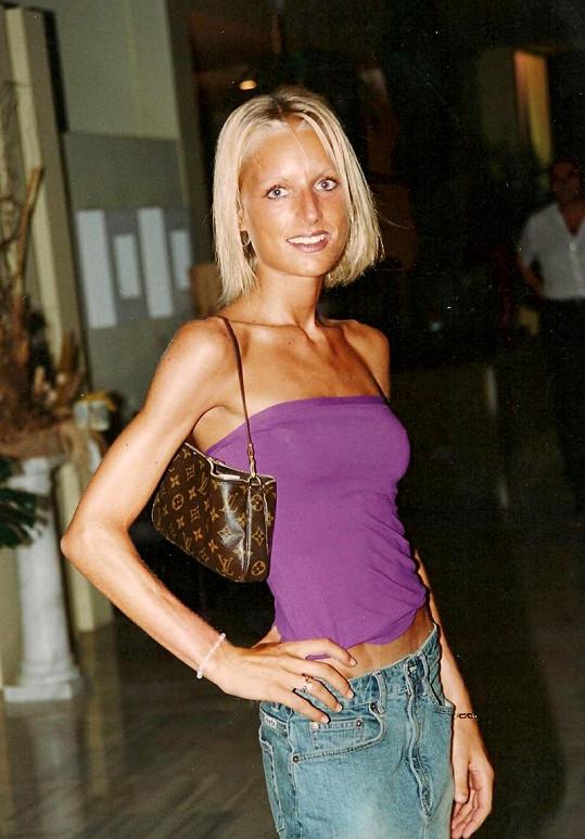 Bývalá modelka to s touhou po štíhlé postavě přehnala.