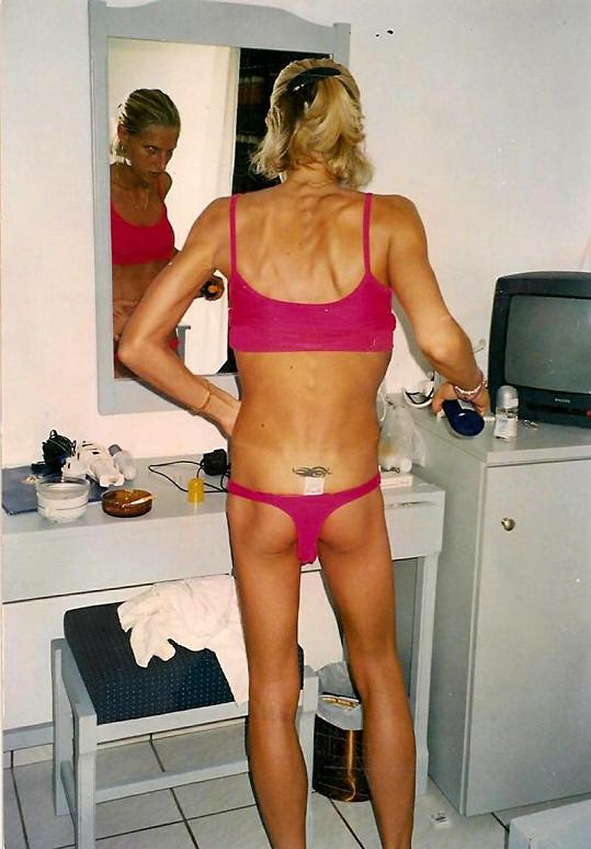 Kate několik let bojovala s anorexií.