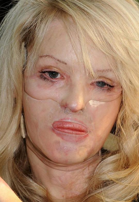 Katie musela dva roky nosit speciální masku.