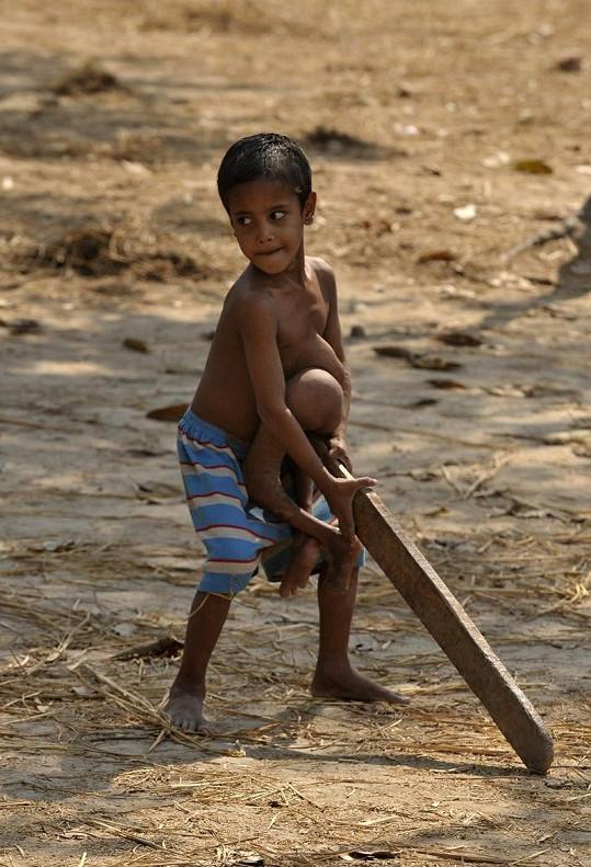 Malému Indovi vadil defekt téměř ve všem, nejvíce však při sportu.