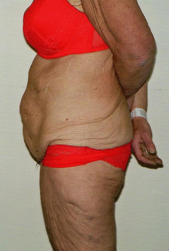 Angličanka prodala dům, aby měla na plastickou operaci, která jí zbavila přebytečné kůže.