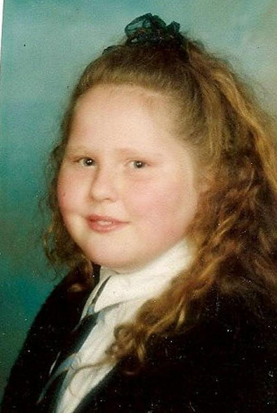 Shelley bojovala s nadbytkem kilogramů už v dětství.