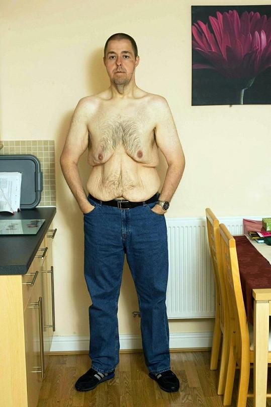 Stephen Hodson se stydí za své tělo stále.