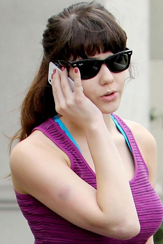Claire Sinclair s modřinou na ruce a slunečními brýlemi.
