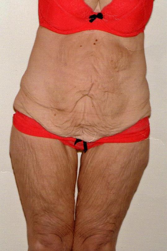 Jayne Fenney sice hodně zhubla, ale pohled na její svlečené tělo nebyl zrovna pěkný.