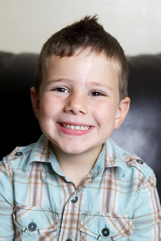 Dnes pětiletý George má po zákroku vidět již téměř nepatrnou jizvu.