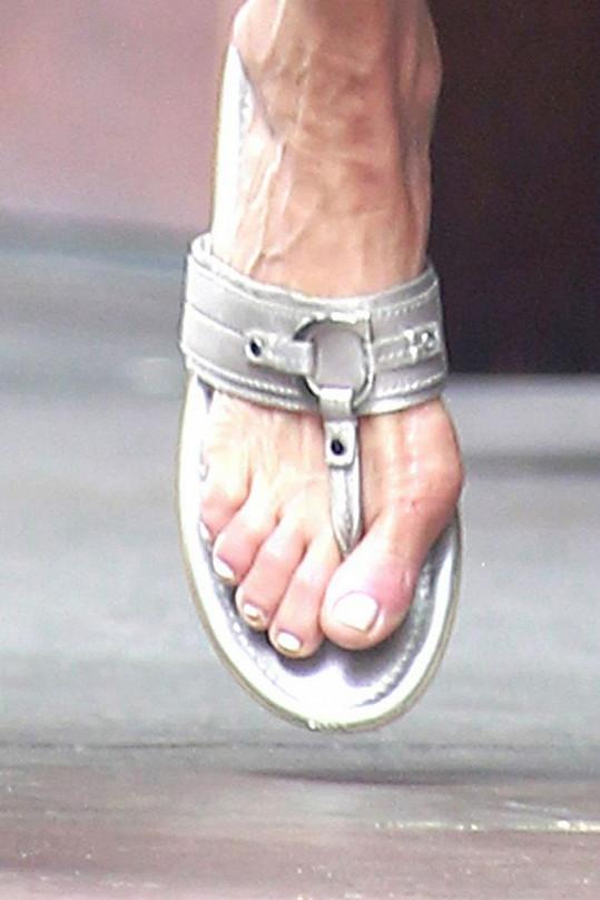 Nevzhledné nohy modelky by akutně potřebovaly pedikúru.