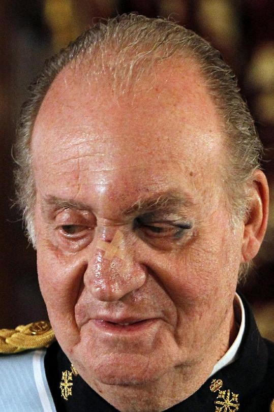 Španělský král Juan Carlos v úterý narazil obličejem do dveří, zůstal mu pořádný monokl.