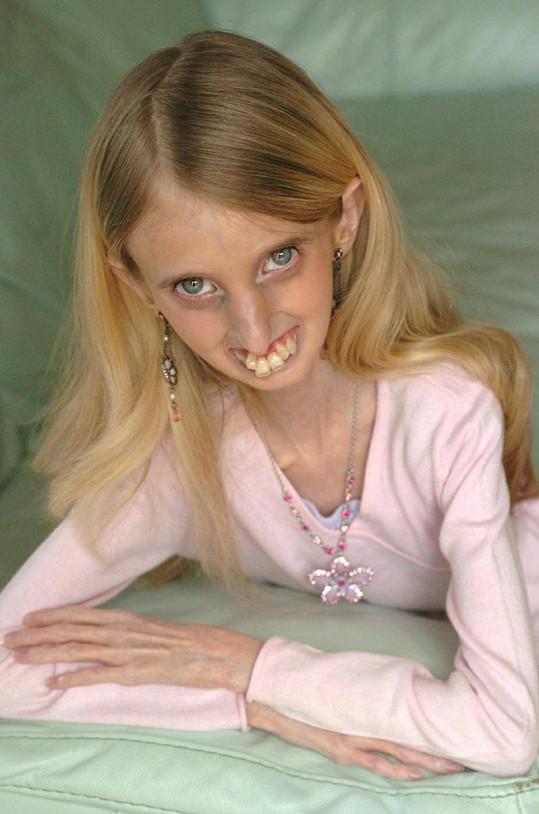 Britka pravděpodobně trpěla nemocí zvanou progerie.