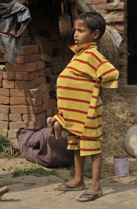Chlapec si kvůli své jinakosti vysloužil u některých šikanu, další jej vzývali jako boha.