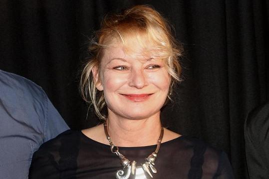 Vilma Cibulková byla oteklá.