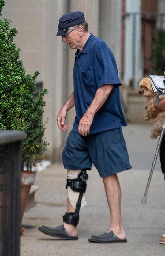 Herec si minulý měsíc natrhl sval na noze.