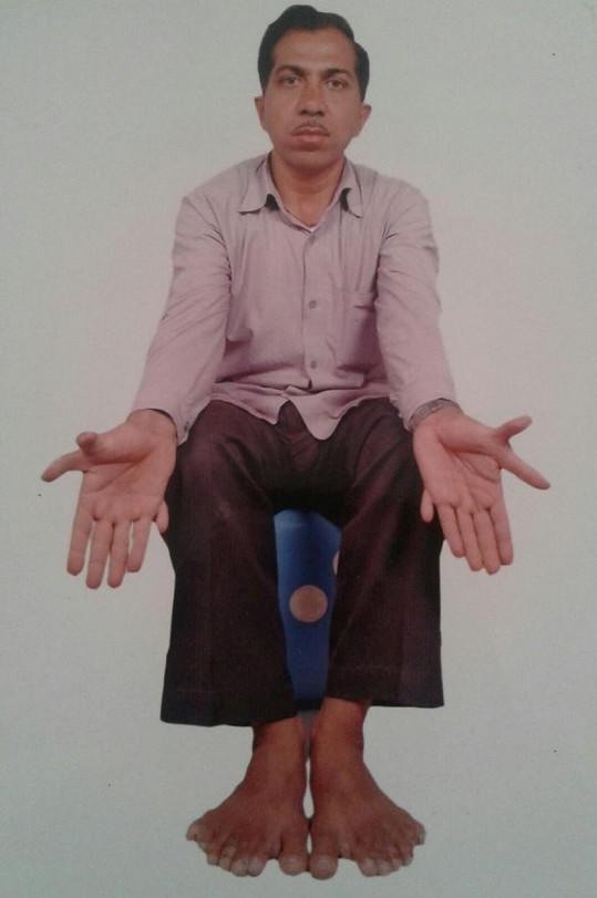 Devendra Suthar trpí vrozenou vadou známou jako polydaktylie.