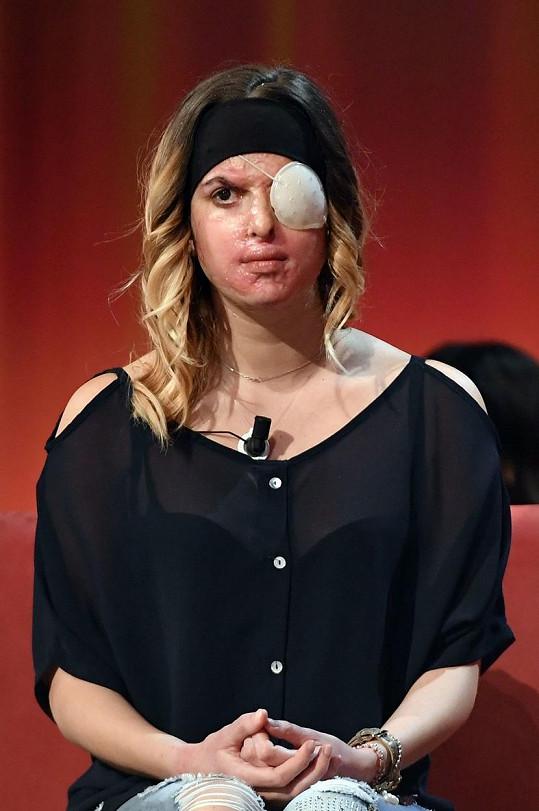 Gessica Notaro nedlouho po útoku kyselinou. Obličej se rozhodla ukázat v televizním pořadu.