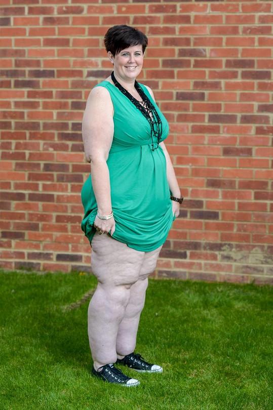 Claire hodně zhubla, nohy jí ale silné zůstaly.