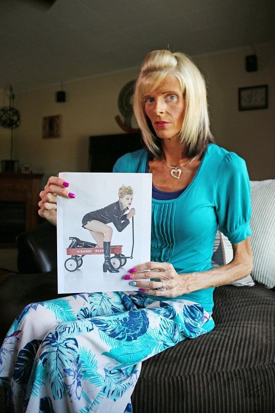 Lisa Brown nedokáže pozřít pevnou stravu.