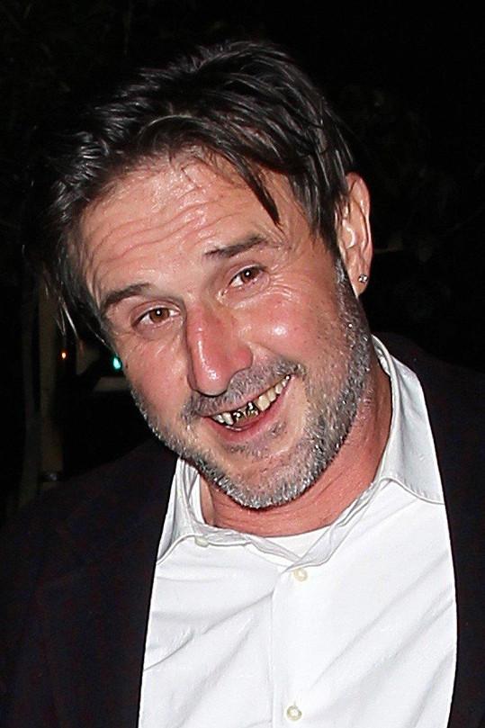 David Arquette a jeho zkažené přední zuby