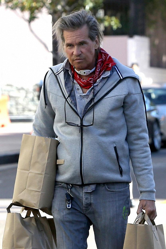 Val Kilmer po provedené tracheostomii