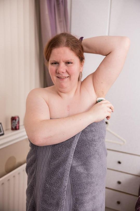 Kelly Fidoe-White trpí vzácnou poruchou.