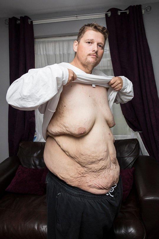 Za poslední dva roky zhubl více než polovinu své hmotnosti a váží 143 kg.