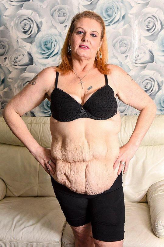 Na těle jí zůstalo 12 kilogramů povislé kůže, která se musí operativně odstranit. Na zákrok Nicky nyní usilovně šetří.