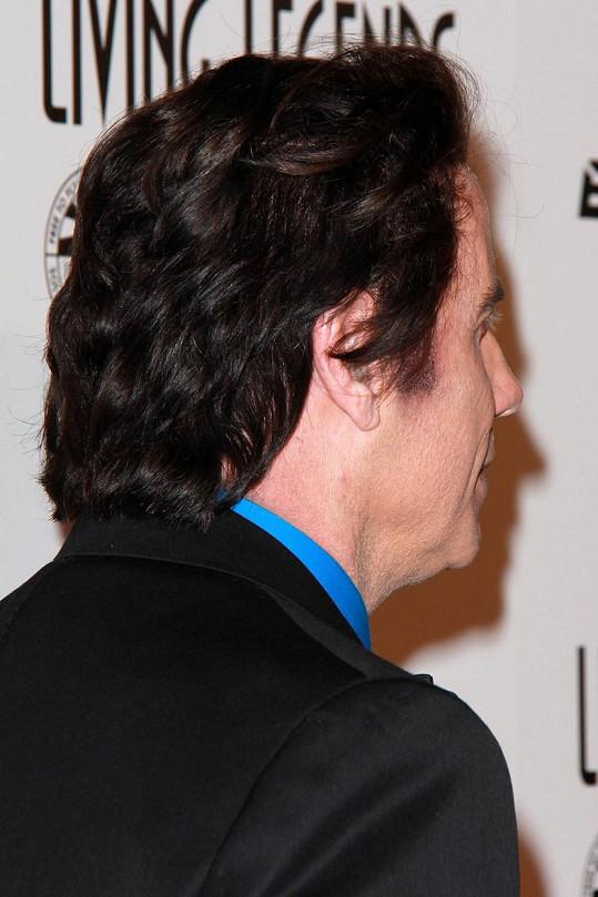Hercův mimořádně hustý vlasový porost.