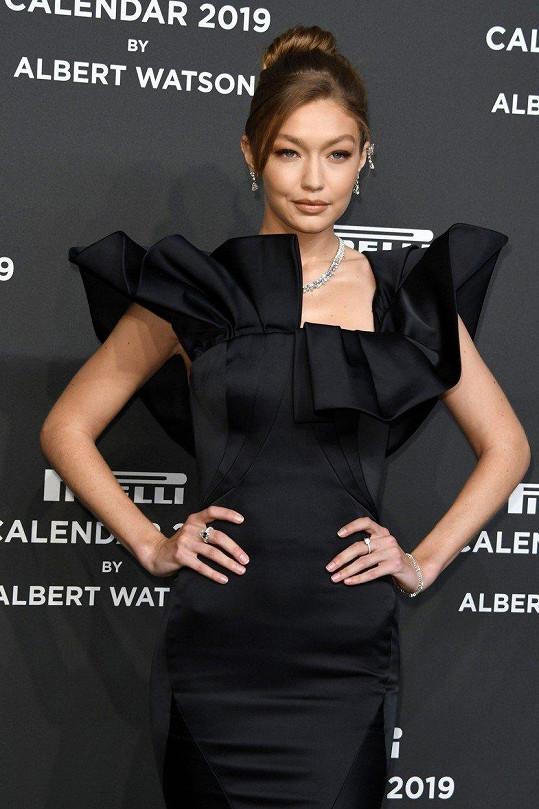 Gigi Hadid trpí poruchou štítné žlázy.