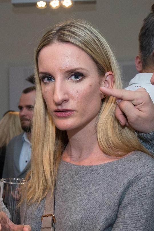 Na akci Banášová dorazila krátce po dermatologickém zákroku.