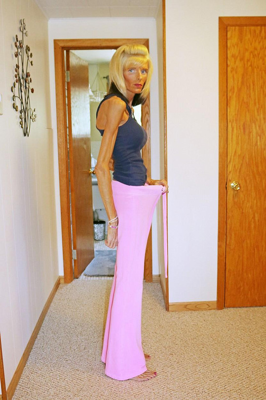 Žena během dvou let zhubla na současných čtyřicet kilogramů.