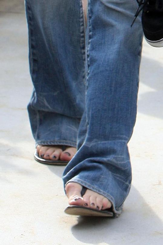 Vybočené palce jsou další deformací jejích chodidel.