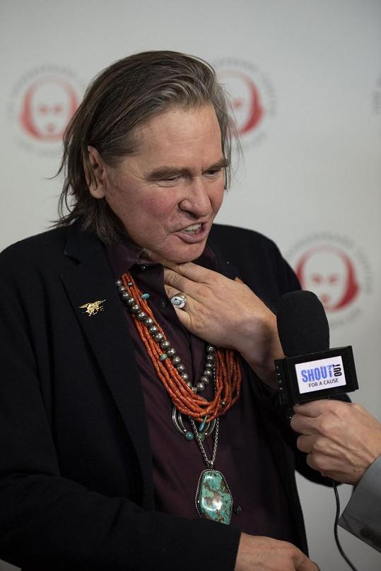 Herec přišel o hlas a k mluvení používá tzv. hlasovou protézu.