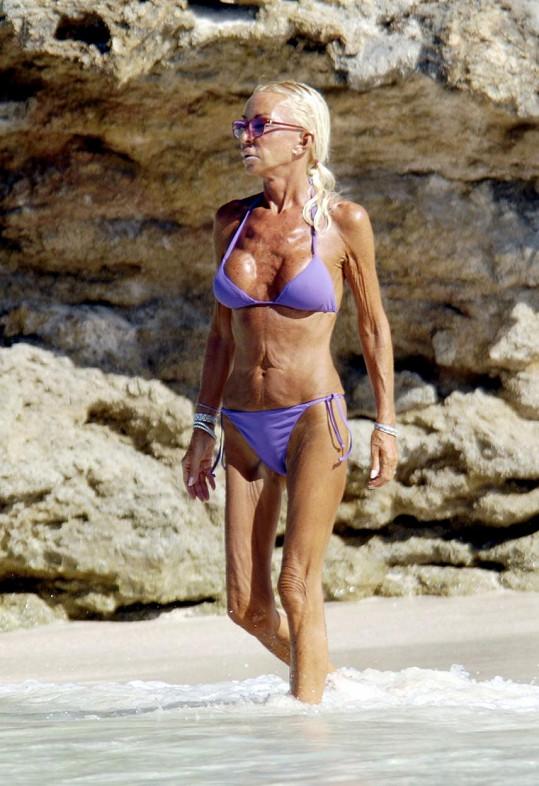 Na dovolené v Karibiku v roce 2008, kdy už byla děsivě hubená.