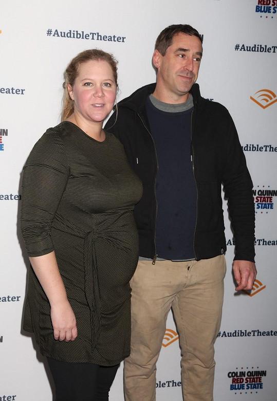 Amy Schumer s manželem nechtěně pojmenovali syna jako genitál.