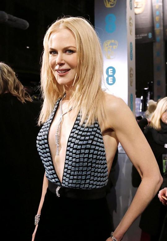 Nicole Kidman není příliš vnadná, přesto odhalila hrudník.