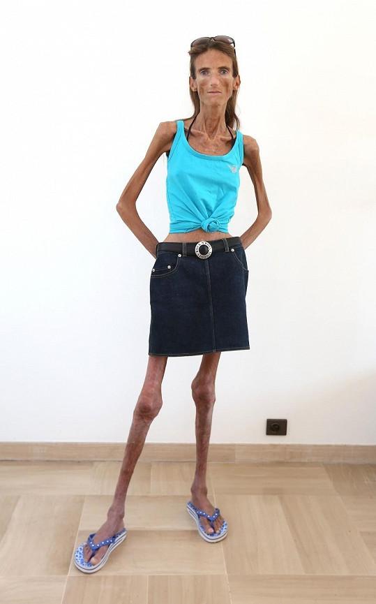 Valeria Levitin bojuje s poruchou příjmu potravy již od puberty.