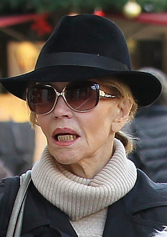 Jane Fonda kdysi oplývala dokonalým chrupem.
