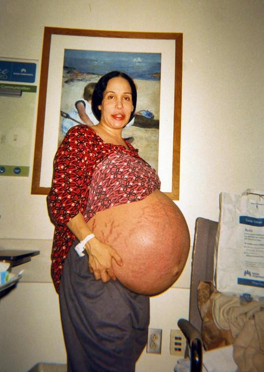 Suleman předtím, než úspěšně přivedla na svět všech osm dětí.