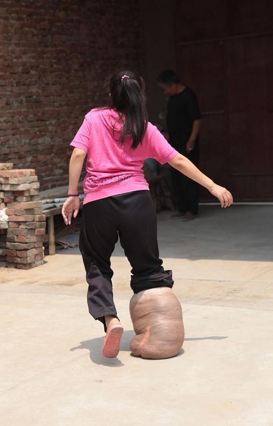 Sun Jingjing se trápí s růstem nádoru na pravé noze.