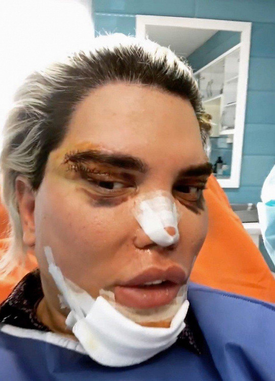 Operaci absolvoval v Teheránu.