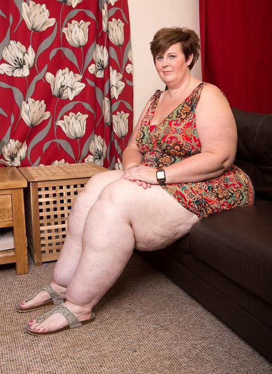 Angličance se tvoří tuková tkáň převážně na dolních končetinách.