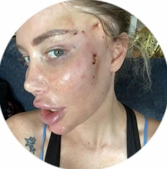Podstoupila několik zákroků včetně liftingu obličeje.