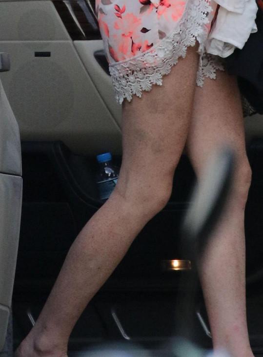Nohy má samou modřinu...