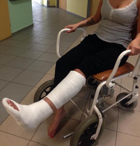 Dívka prý po nárazu Kociánova auta utrpěla zlomeninu nohy.