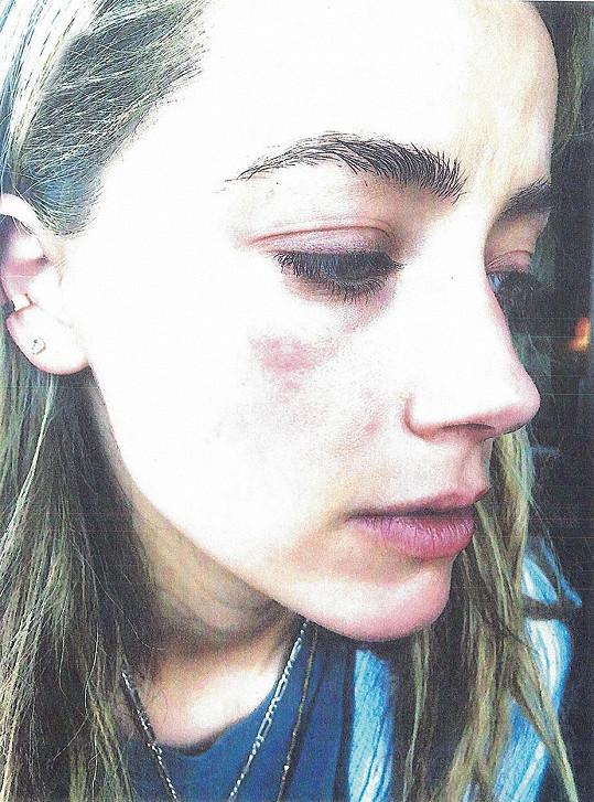 Herečka krátce po údajném sobotním napadení.