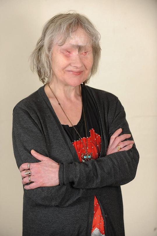 Wendy prodělala přes sto operací.