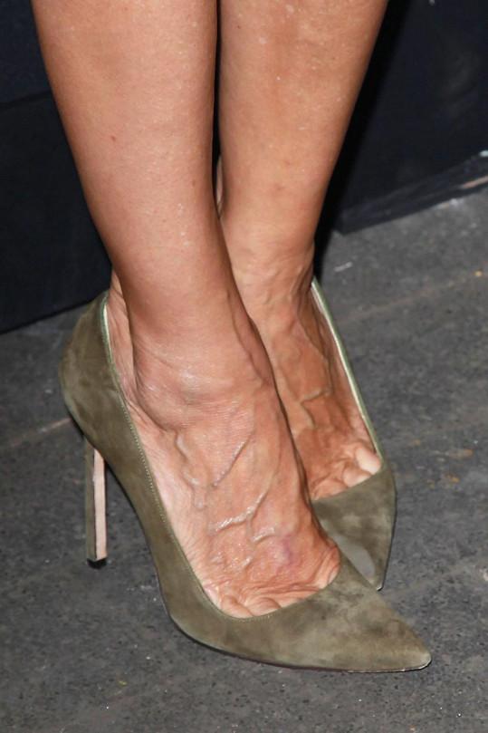 Ani nohy nejsou u slavné herečky zrovna výstavním zbožím.